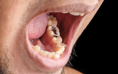 Fill Your Tooth Like a Dentist – Not All Fillings Are Created Equal